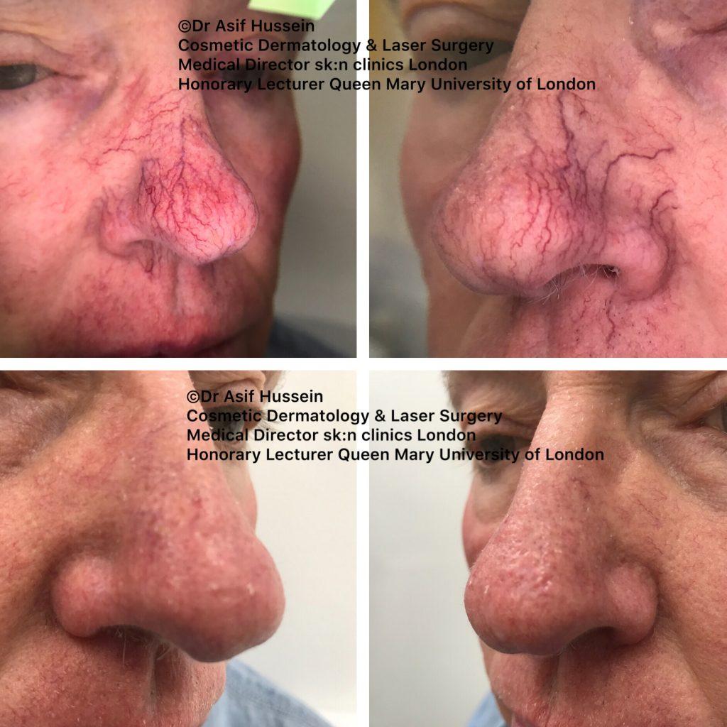 Facial Veins & Spider Naevi treatment