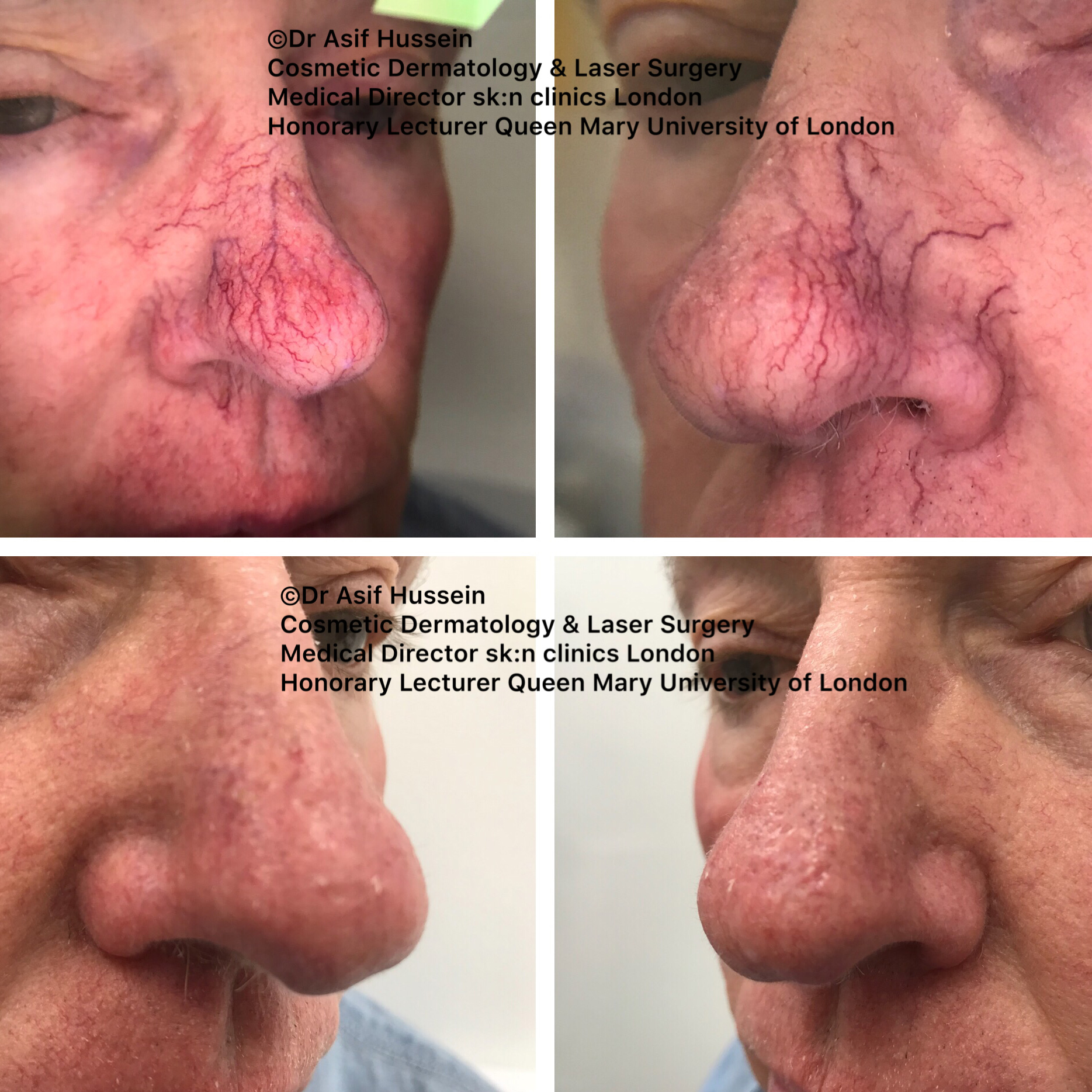 Facial Vein Spider Naevi Removal London Dr H Consult