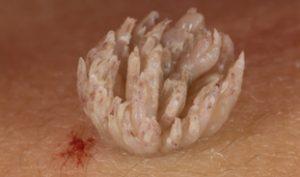 Filiform Warts