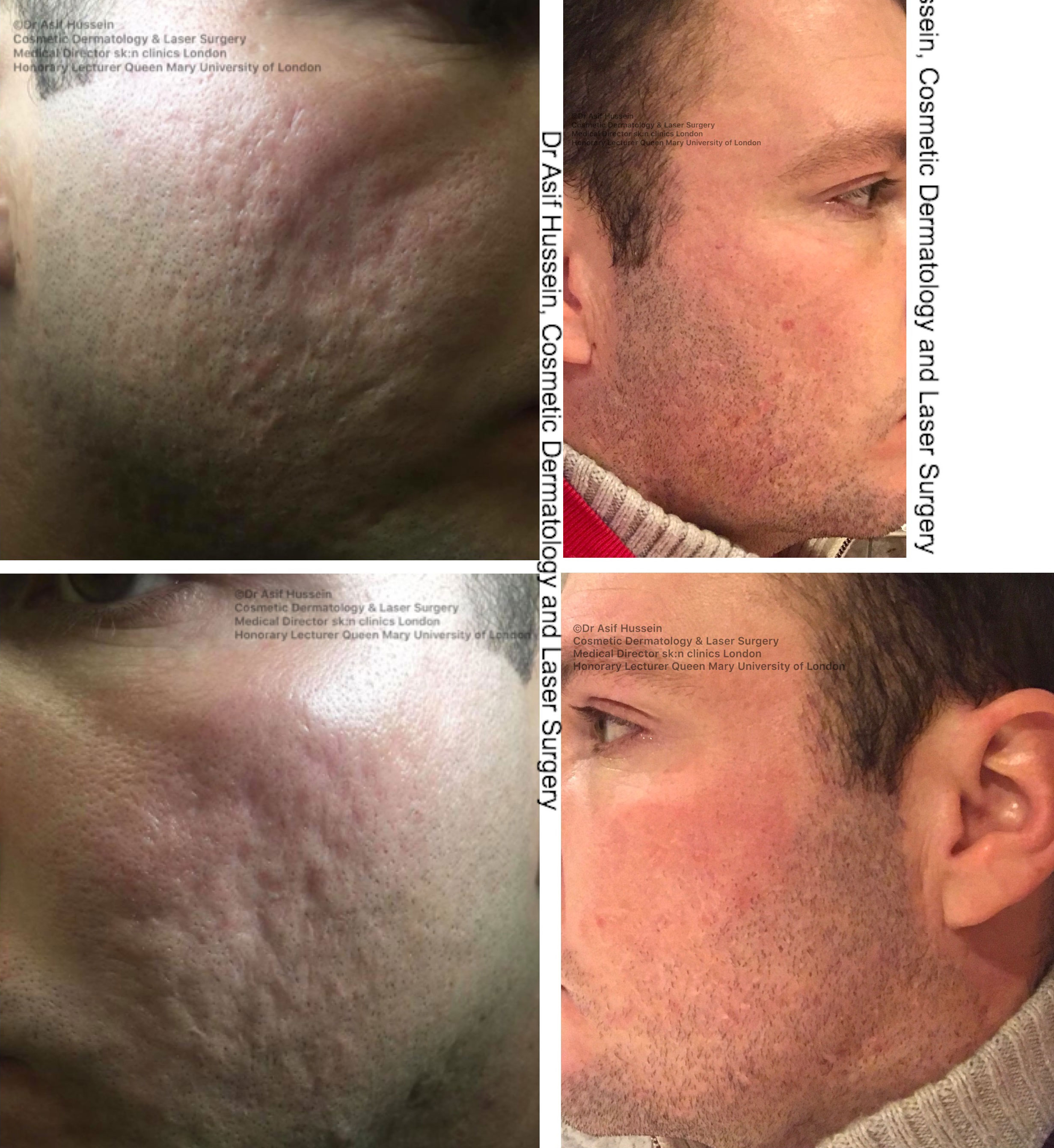 Acne Scar Laser Treatment Removal London Dr H Consult
