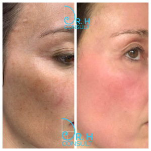 Sciton HALO & Micropeel before and after 2