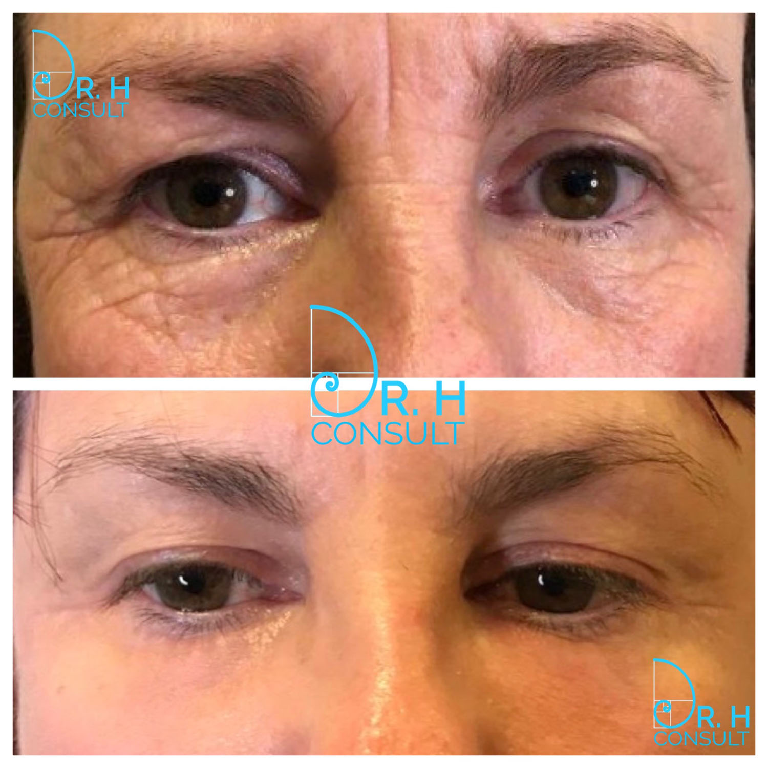Laser eyelid tightening