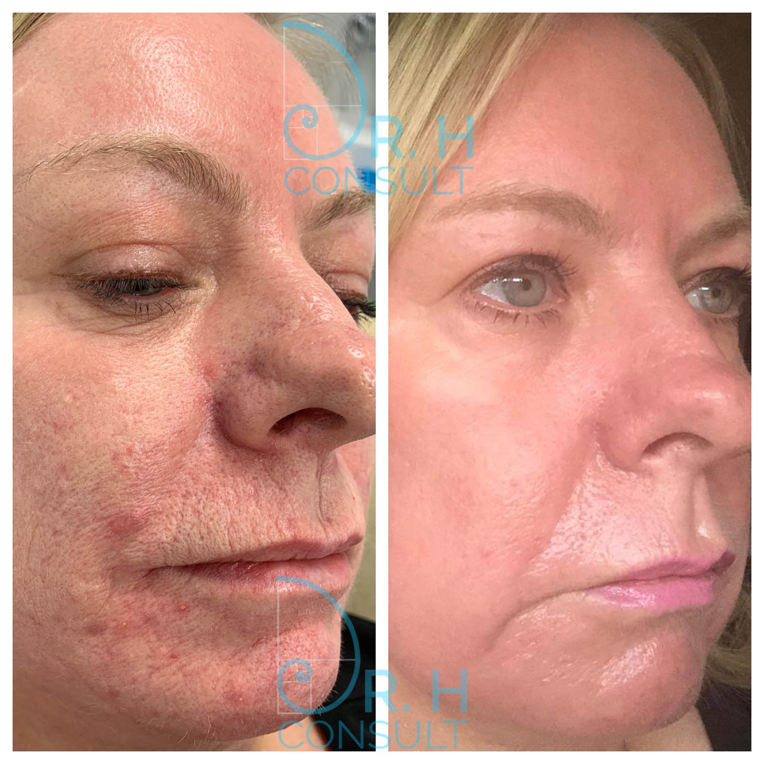 Fully Ablative Laser Resurfacing