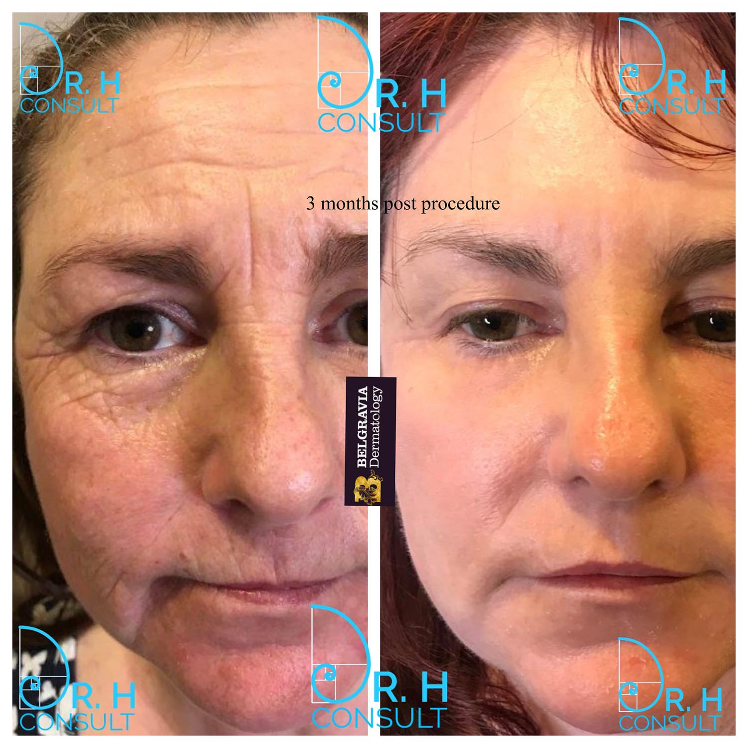Fully Ablative Co2 Laser Resurfacing Treatment Dr H Consult