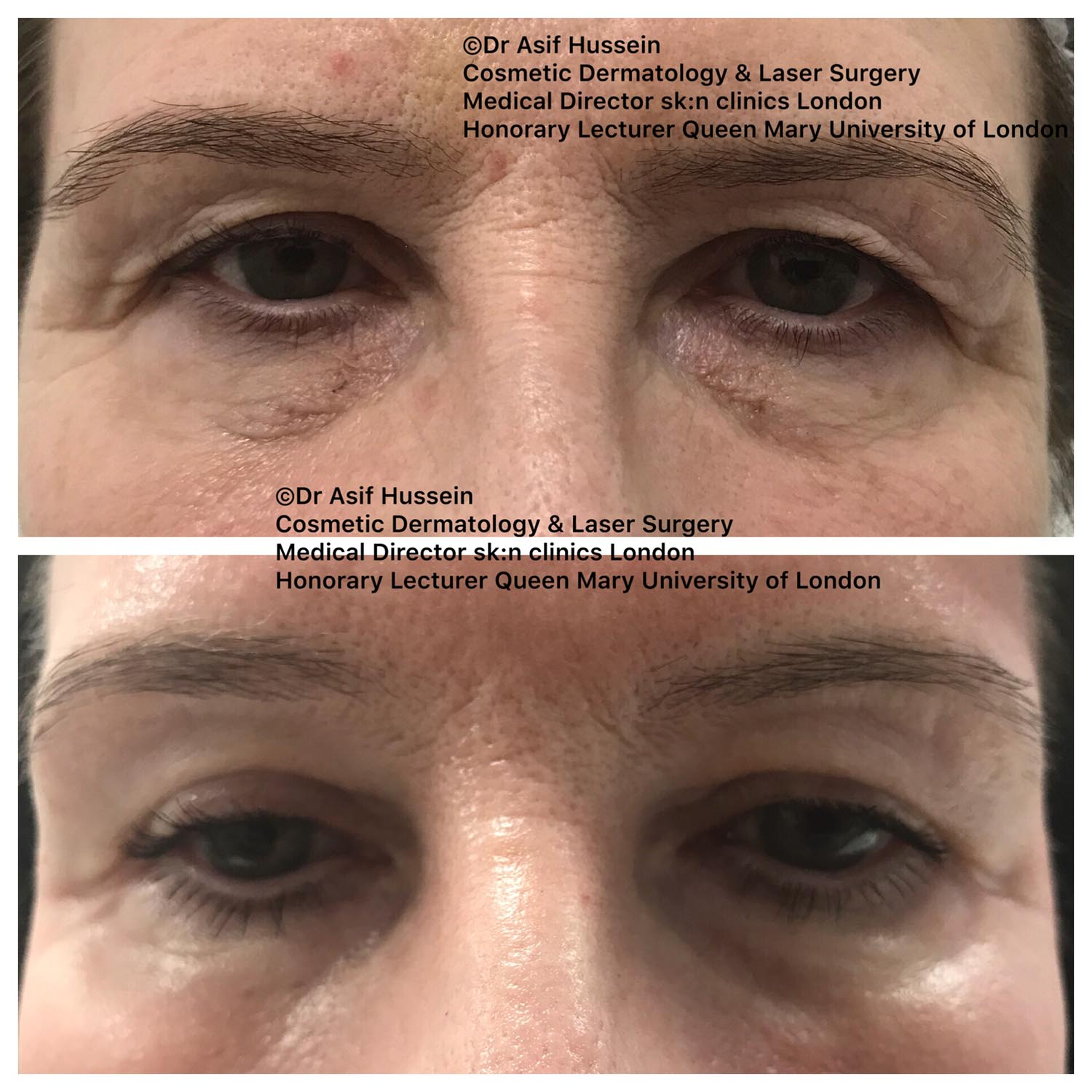 Laser Eyelid Tightening Surgery & Treatment | Dr H Consult