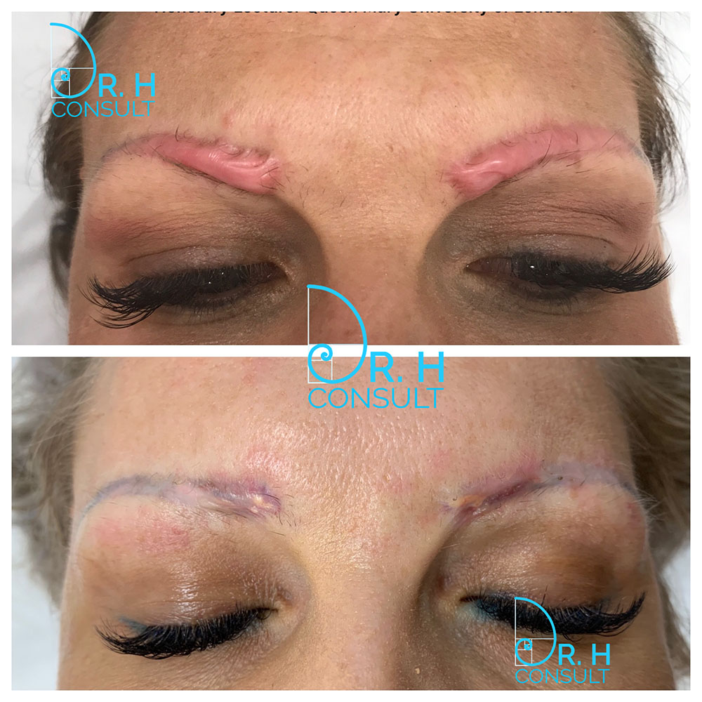 Hypertrophic Scar Treatment Removal London Dr H Consult
