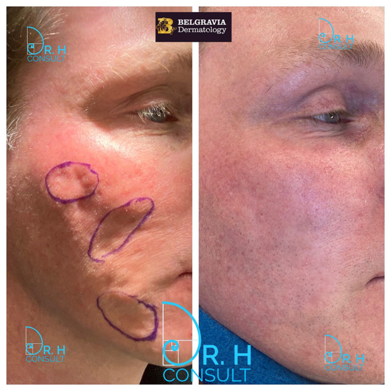 Acne Scar Laser Treatment & Removal London | Dr H Consult