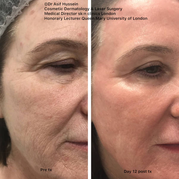 This lady has also been treated with a fully ablative CO2 resurfacing procedure by Dr Hussein. The rejuvenation capability of this treatment is outstanding. The photos make this immediately obvious. Look carefully at the eye area. Dr Hussein included eyelids in this treatment as well. Look at the degree of tightening and wrinkle reduction around the eyes.