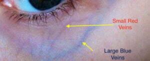 Periorbital veins diagram