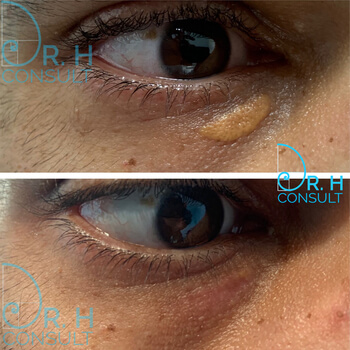 Xanthelasma before and after treatment