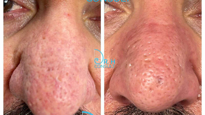 Dr H - Rhinophyma - Before & After opto