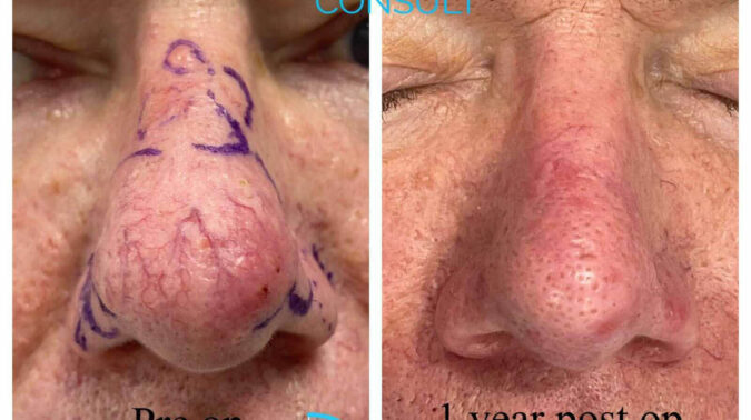 Rhinophyma Dr H Consult